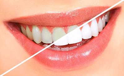 نکات طلایی برای داشتن دندان های سالم