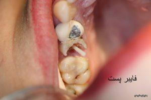 بازسازی دندانها و فایبر پست
