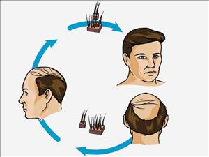 کاشت مو به روش طبیعی چگونه است؟