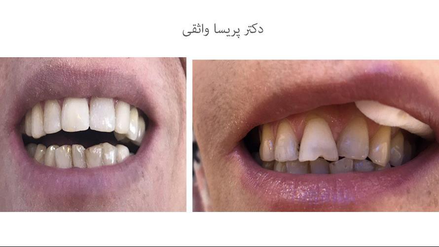 دندانپزشک درمان ریشه
