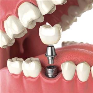 ایمپلنت دندان و مزایای آن