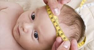"""مشکل شایعی به نام """"بزرگی یا کوچکی اندازه دور سر"""" در شیرخواران و کودکان"""
