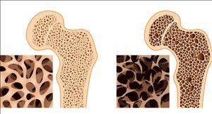 پوکی استخوان؛ دردناک اما قابل درمان