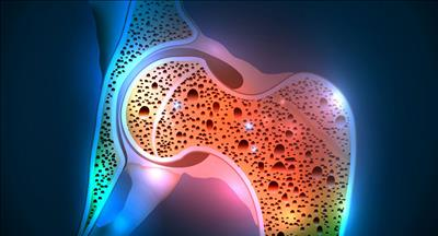 درمان های خانگی پوکی استخوان