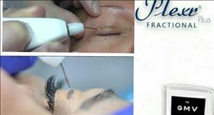 درمان و رفع افتادگی پلک ها به روش نوین