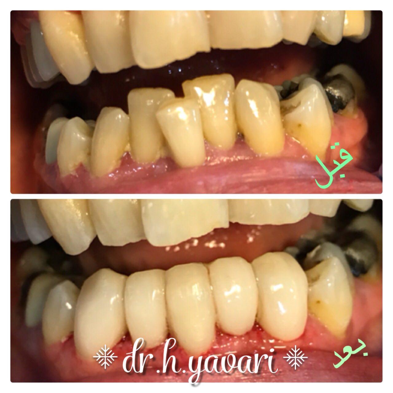 اصلاح فرم دندان توسط ونیر کامپوزیتی با حداقل تراش