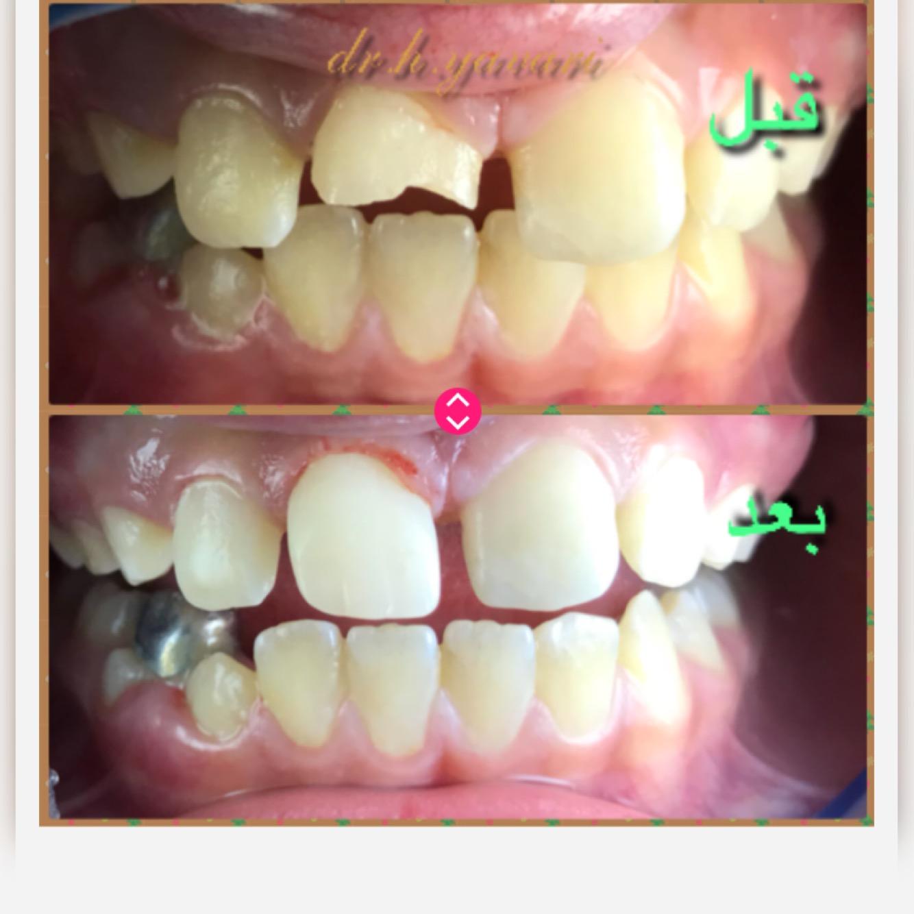 اصلاح شکستگی نوک دندان دختر ۹ ساله