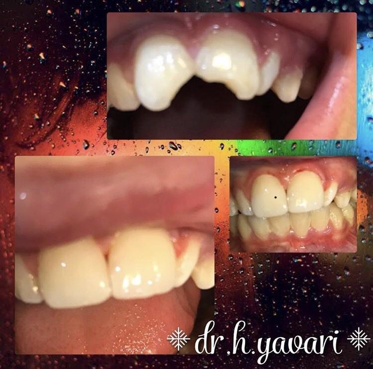 ترمیم شکستگی لبه دندان با کامپوزیتی