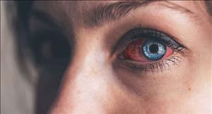 چگونه از عفونت چشم ها در هنگام استفاده از لنز جلوگیری کنیم ؟