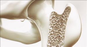 پوکی استخوان و روش های تشخیص و درمان پوکی استخوان