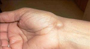 کیست مچ دست (کیست گانگلیونی)