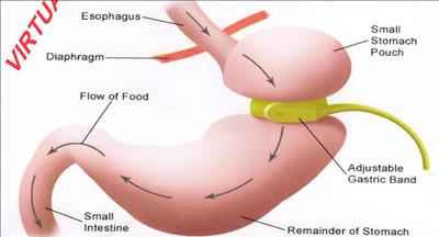 جراحی حلقه معده (بندینگ)