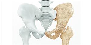 نقش تغذیه برای مقابله با پوکی استخوان
