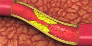 مفهوم چربی خون و کنترل چربی خون در طب سنتی