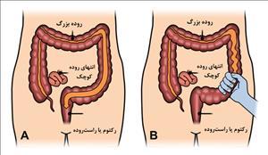 علایم و درمان سندرم یا بیماری روده تحریک پذیر (آی بی اس IBS)