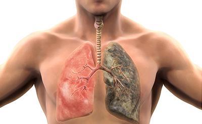 نشانه های هشدار دهنده سرطان ریه در سیگاری ها