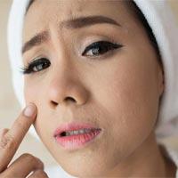 دانستنی های سلامت - آیا لیزر برای درمان جوش صورت مفید است؟
