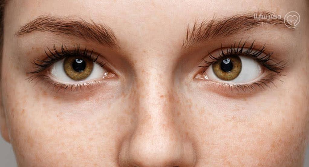 درمان خانگی انحراف چشم با چند تمرین ساده