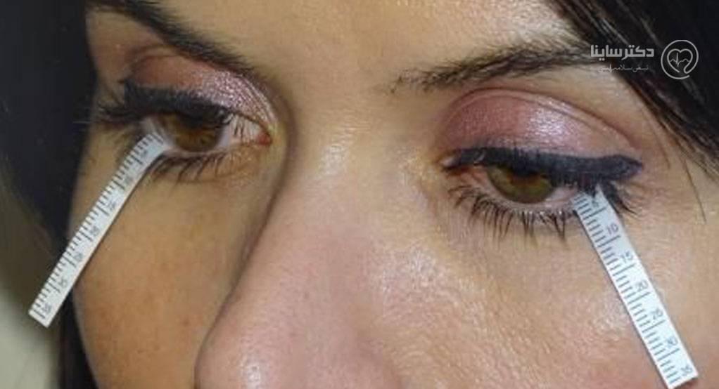 درمان قطعی خشکی چشم