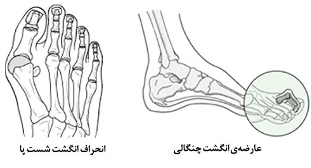 روماتیسم مفصلی پا