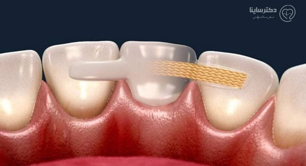 بریج دندان بدون تراش
