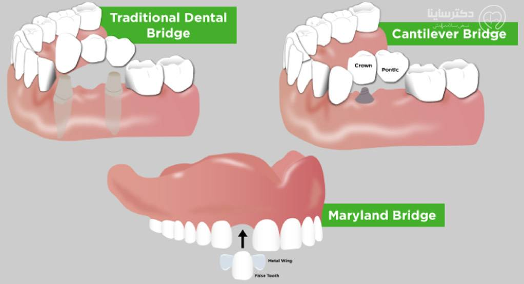 انواع بریج کاشت دندان به روش بریج