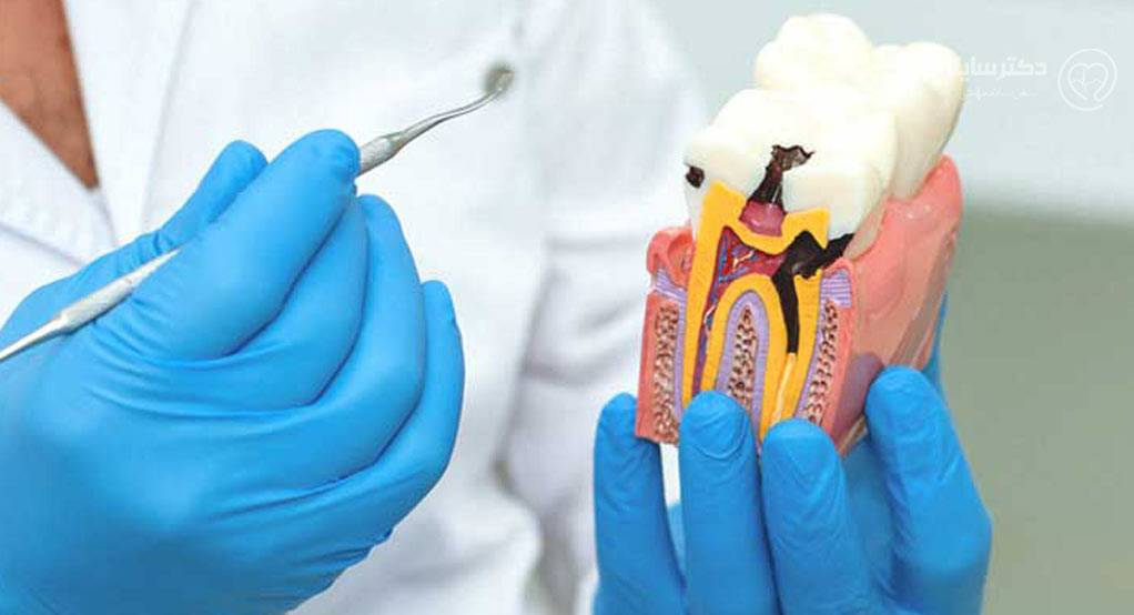 عصب کشی دندان جلو