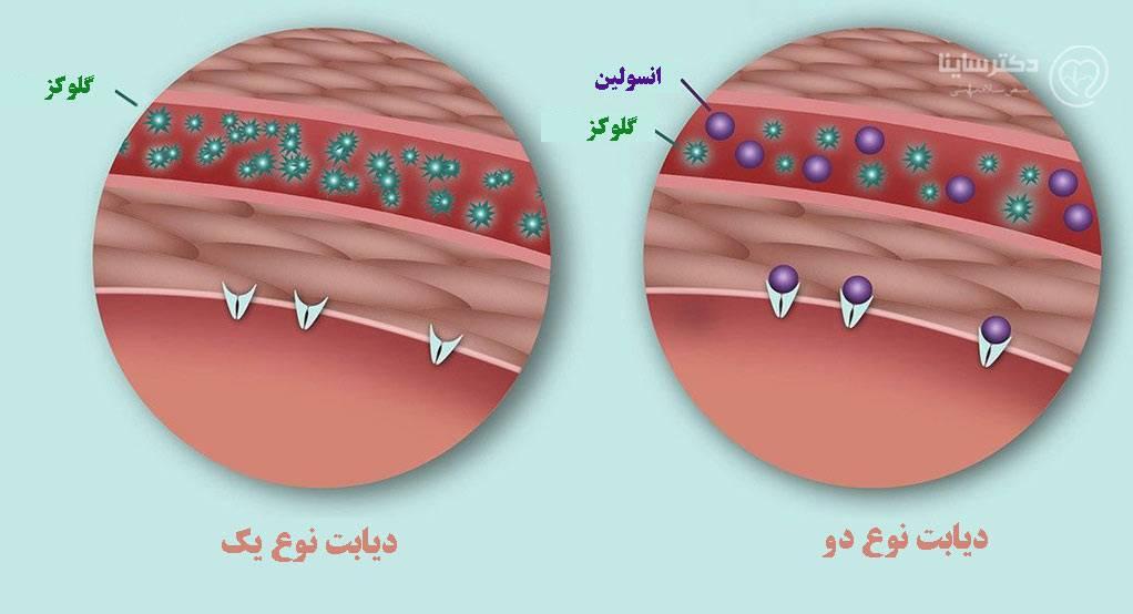 فرق دیابت نوع یک و دو انواع دیابت تفاوت دیابت یک و دو