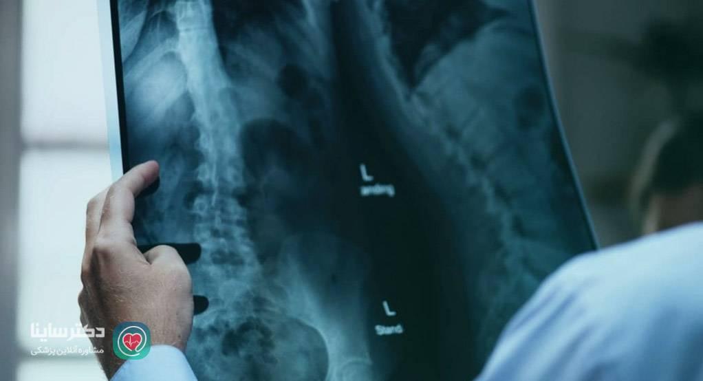 علت درد سیاتیک عوارض سیاتیک