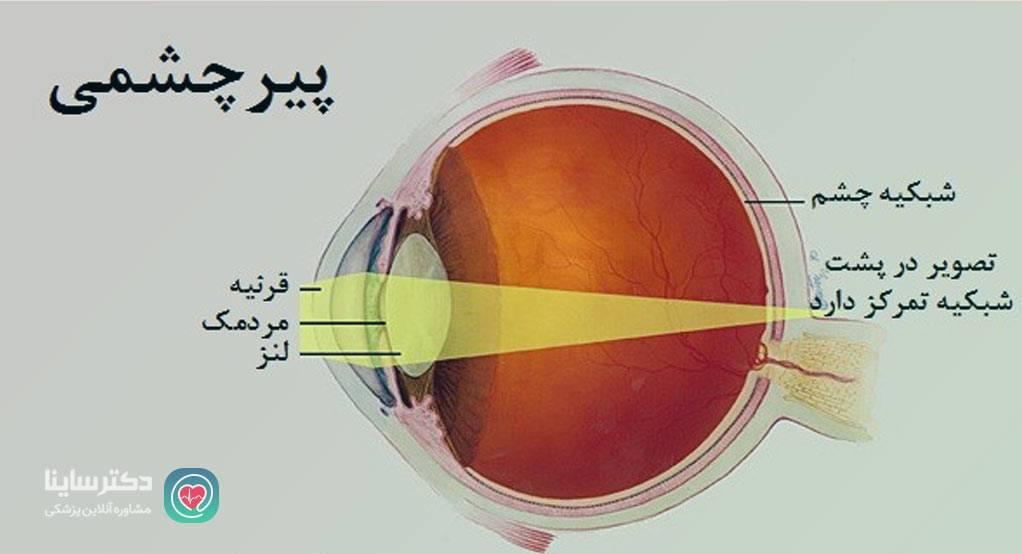 پیر چشمی چیست پیرچشمی
