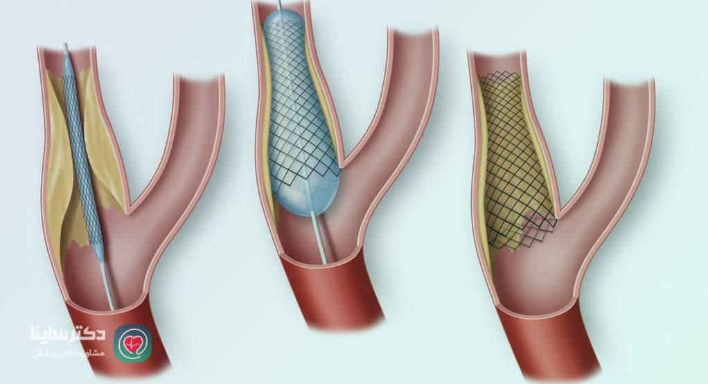 درمان سکته قلبی آنژیو بعد از سکته قلبی