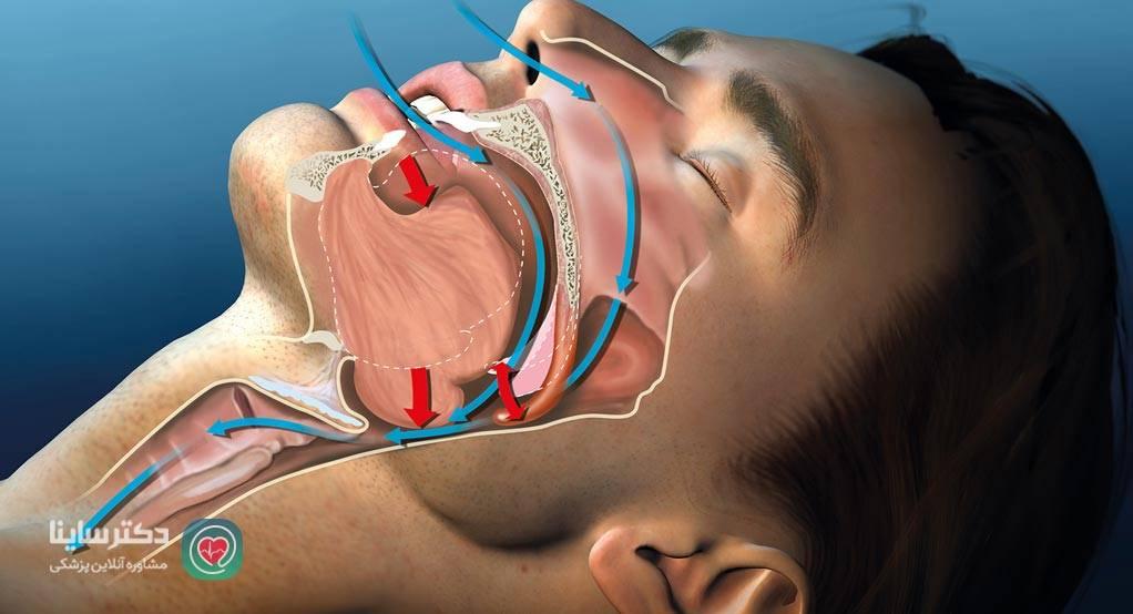 انفارکتوس میوکارد علائم سکته قلبی خفیف علائم سکته قلبی در خواب