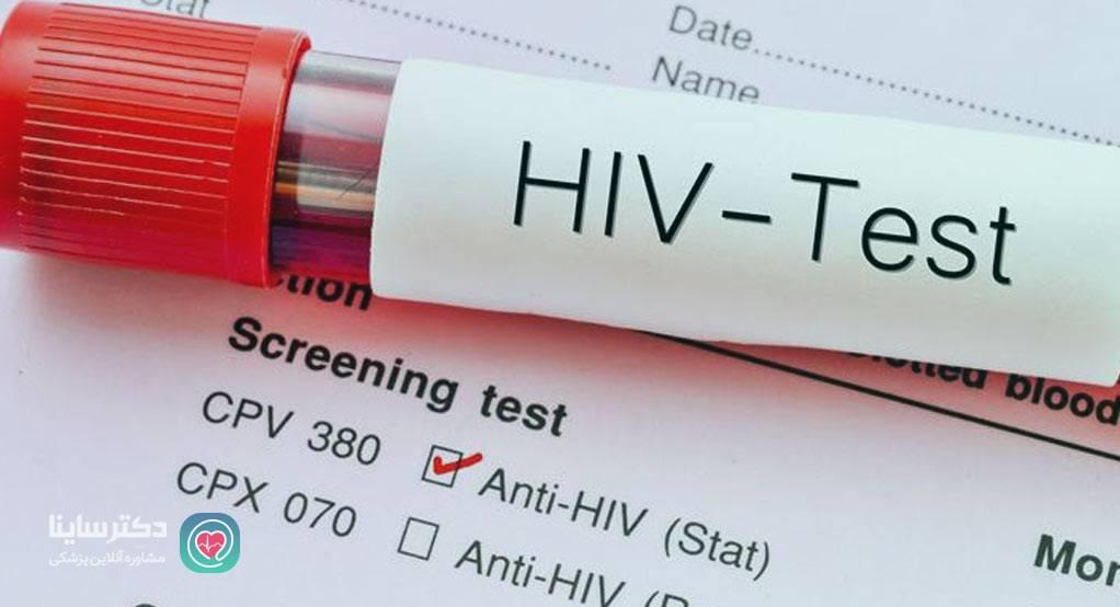 نشانه هاي ايدز علايم ايدز در زنان زمان بروز اولین علایم ایدز