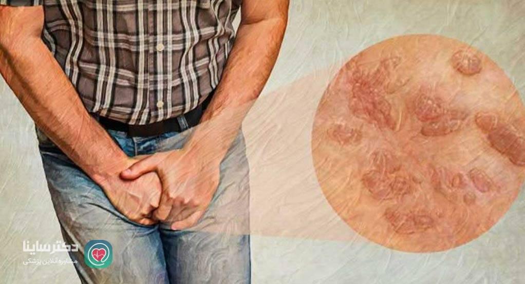 انواع بیماری های مقاربتی با عکس بیماری های مقاربتی مردان بیماری های جنسی مردان