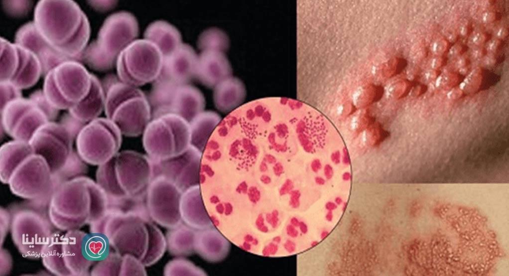 تصاویر بیماری های مقاربتی انواع بیماری های مقاربتی با عکس