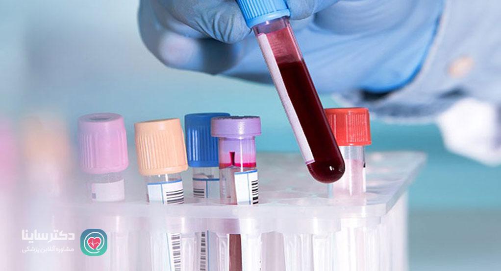 تفسیر آزمایش های هپاتیت علامت اختصاری هپاتیت در آزمایش خون