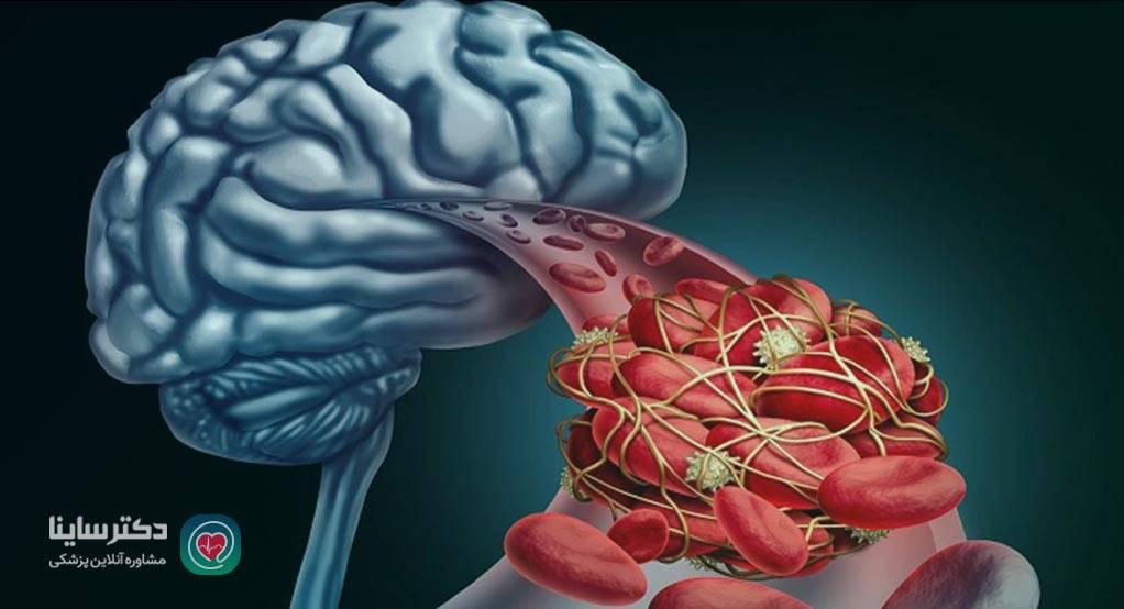 درمان خانگی سکته مغزی